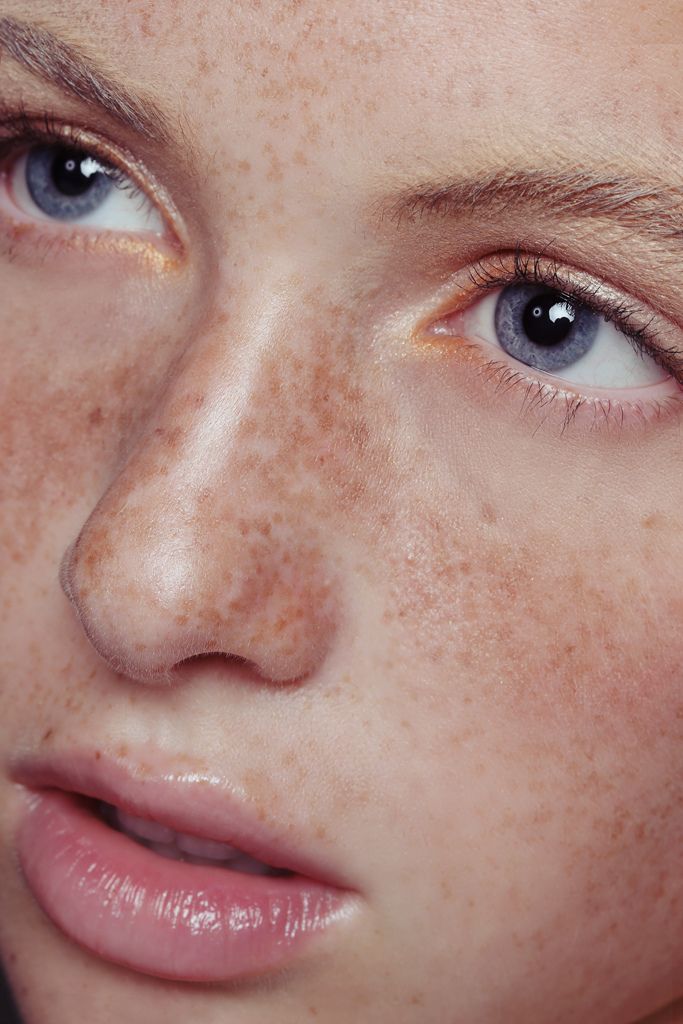 pale, eyes, and freckles image