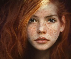 freckles, red, and ginger image