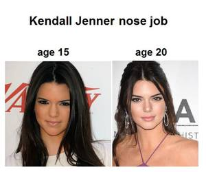 before, plastic surgery, and nose job image