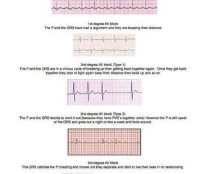 cardiac, medicine, and cardiology image