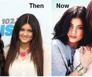 before, plastic surgery, and kendall jenner image