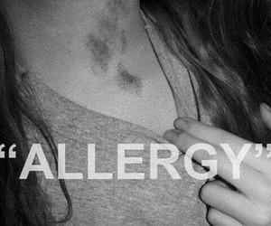 allergy, kiss, and hickey image