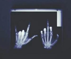 black, bones, and pale image