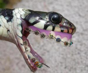 snake, braces, and lol image