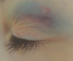 pale, bruise, and eye image