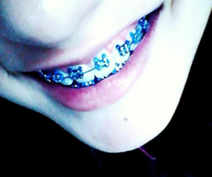 blue, braces, and cool image