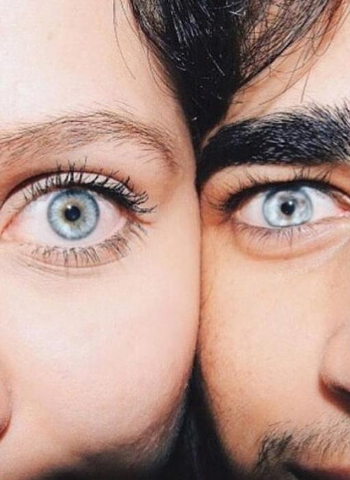 закрыть вместе глаза на фото причины покраснений бывают