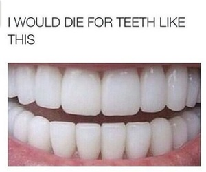 teeth, white, and perfect image