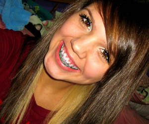 Pictures of girls in braces, sexy nude chubby mexican girl