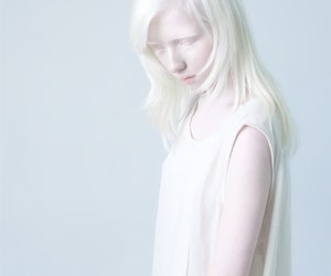 albino, beautiful, and girl image