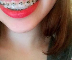 beautiful, braces, and lips image
