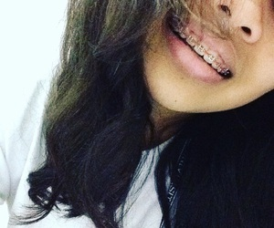 braces, curly, and girl image