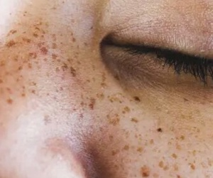 freckles and tumblr image