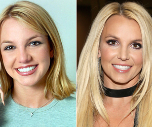 Speaking, would famous people before and after surgery think