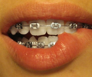 braces and lips image