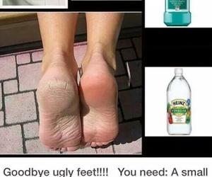 achy feet doe image