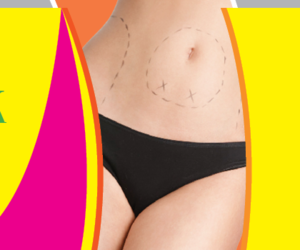 tummy tuck, placidway, and tummy tuck in thailand image