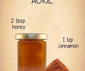 acne, diy, and honey image