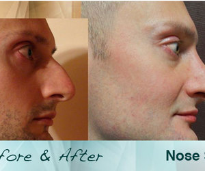 nose surgery, rhinoplasty, and placidway image
