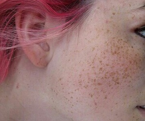 freckles, photography, and pink hair image