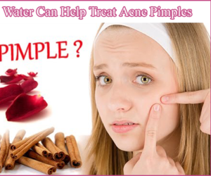 rosewater, acnetreatment, and treatacne image