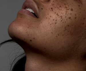 body, ​beatiful, and freckles image