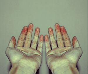 hands, blood, and red image