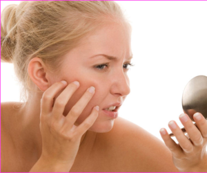 beautytips, acnetreatment, and cureacne image