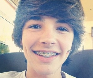 boy, dimples, and braces image