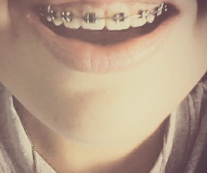 dientes and brackets image