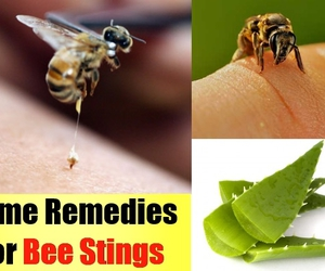bee sting, bee sting swelling, and bee sting therapy image