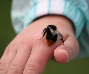 bee sting swelling, bee sting allergy, and bee sting therapy image