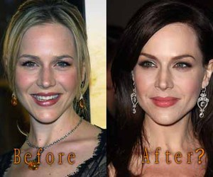 botox, julie benz, and celebrity plastic surgery image