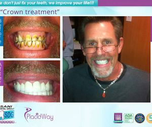 mexico, placidway, and dental crowns image