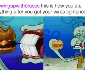 braces, burger, and funny image