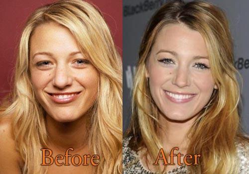 blake lively, botox, and nose job image