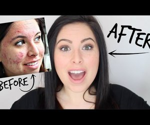youtube, acne, and skin image