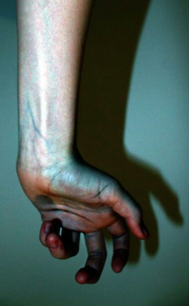 arm, hand, and veins image