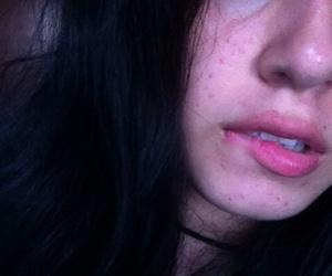 acne, dark, and rad image