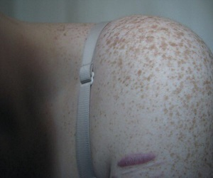 body, freckles, and pain image
