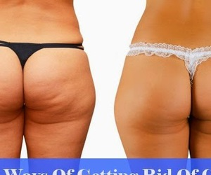 beauty, cellulite, and weight loss image