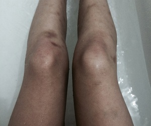 bruises, faded, and legs image
