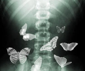 butterfly, x-ray, and spine image