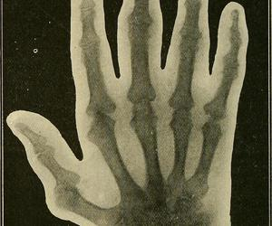 hand, xray, and bookcollection:americana image