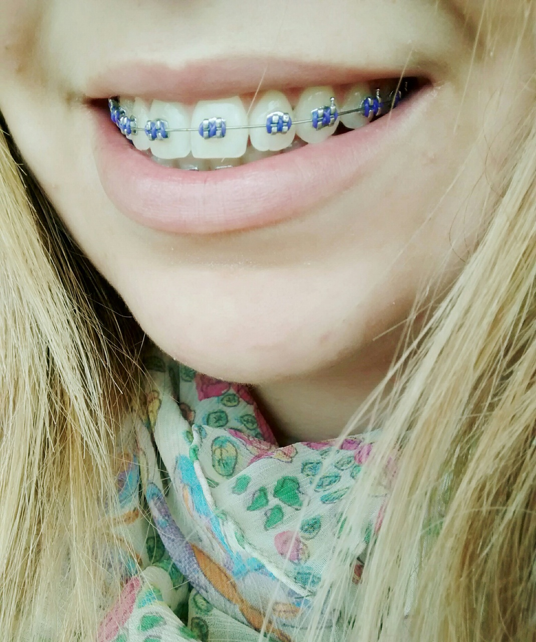 braces, brackets, and happy image
