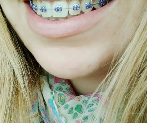 braces, happy, and lips image