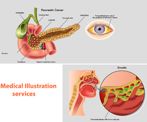 illustration services, illustration companies, and medical book illustration image