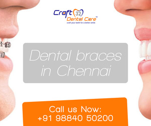 craft, orthodontic, and dentist image