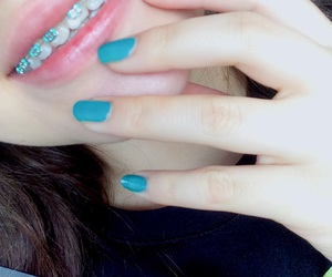 braces, girl, and green image
