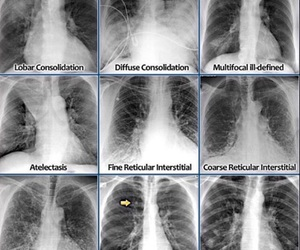 doctor, study, and lungs image